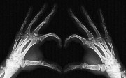 Will AWS X-Ray Become a New Relic Alternative?